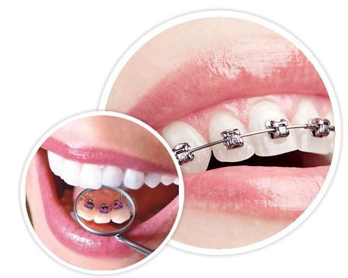Исправление зубов и прикуса